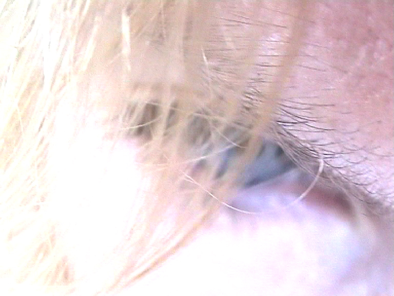 pink eye 2.jpg