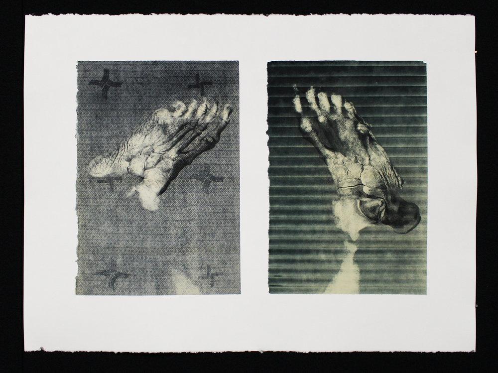 """""""Neuropathy,"""" Photo Intaglio, 22"""" x 30,"""" 2017"""