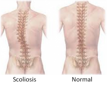 scoliosis back pain terrace physio plus