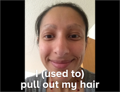 habitaware-keen-review-bracelet-awareness-trichotillomania-treatment-bfrbs-aneela-hair-pulling.png