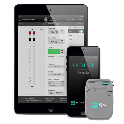 St. Jude's Spinal Cord Stimulation Trial System