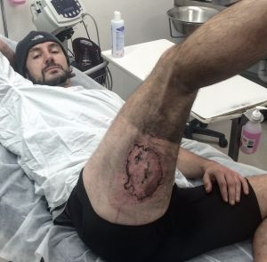 Gareth Clear of Bondi, Australia shows the burn caused by an iPhone battery explosion. Photo from Sydney Morning Herald.