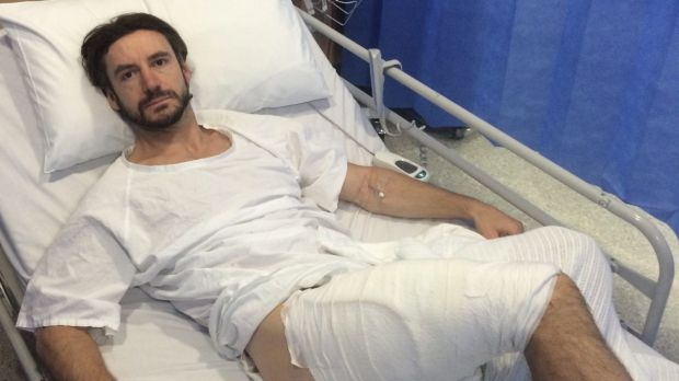 Gareth Clear recovering from his burn in a Sydney-area hospital. Photo via Sydney Morning Herald.