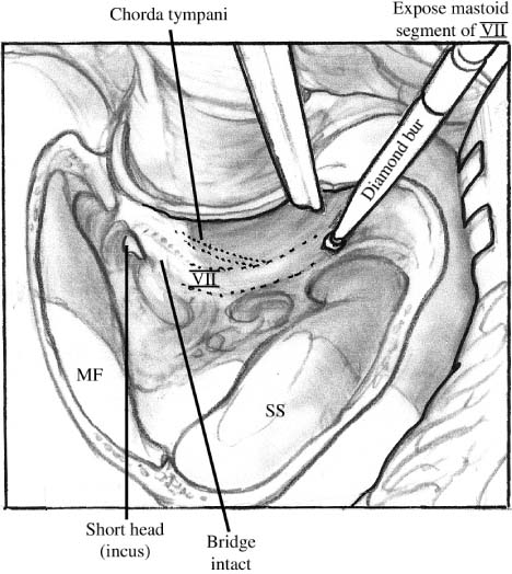 Chapter 8 Canal Wall Up Mastoidectomy Ear