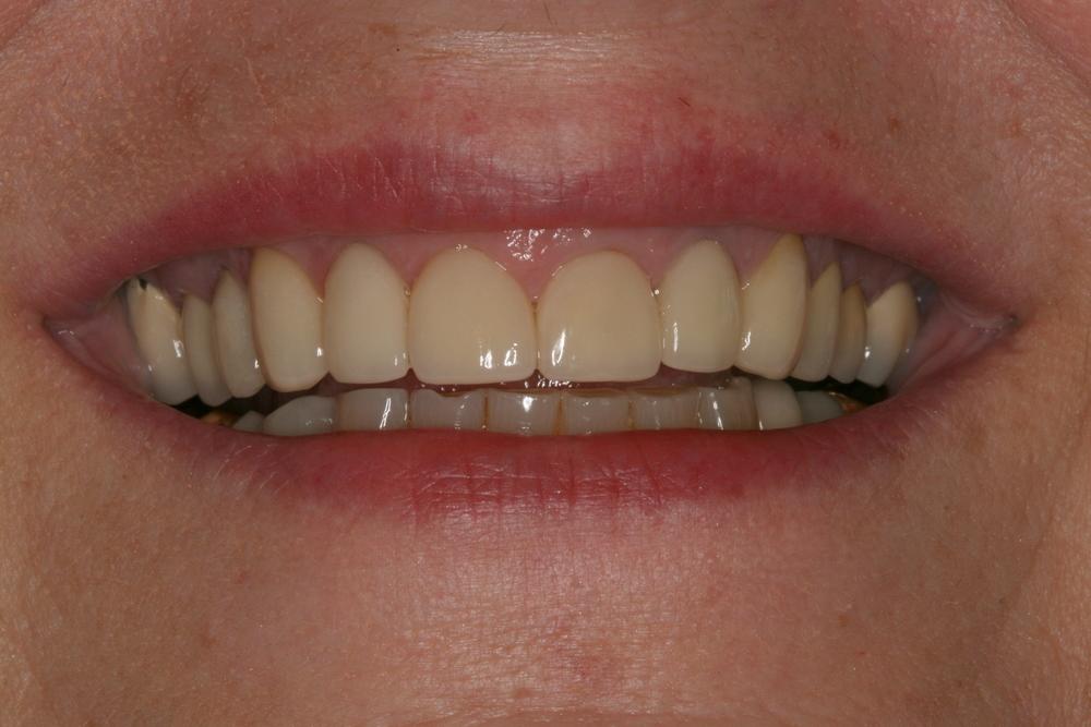 The_Tuddenham_Road_Dental_Surgery_Smile_Makeovers.JPG