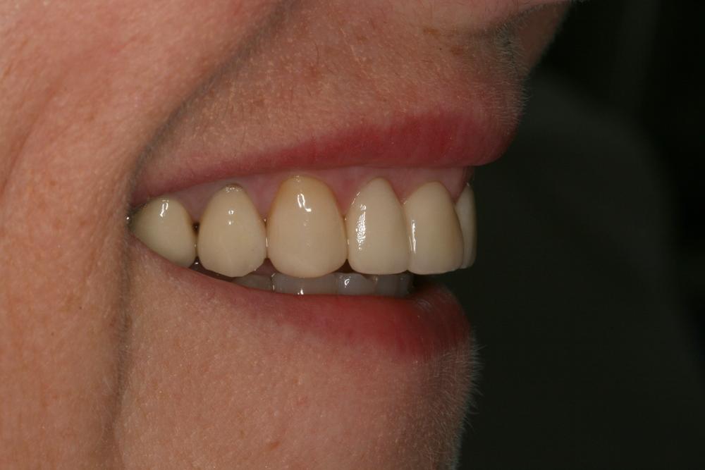 The_Tuddenham_Road_Dental_Surgery_Veeners_Side.JPG