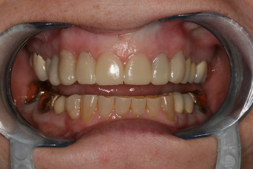The_Tuddenham_Road_Dental_Surgery_Teeth.JPG