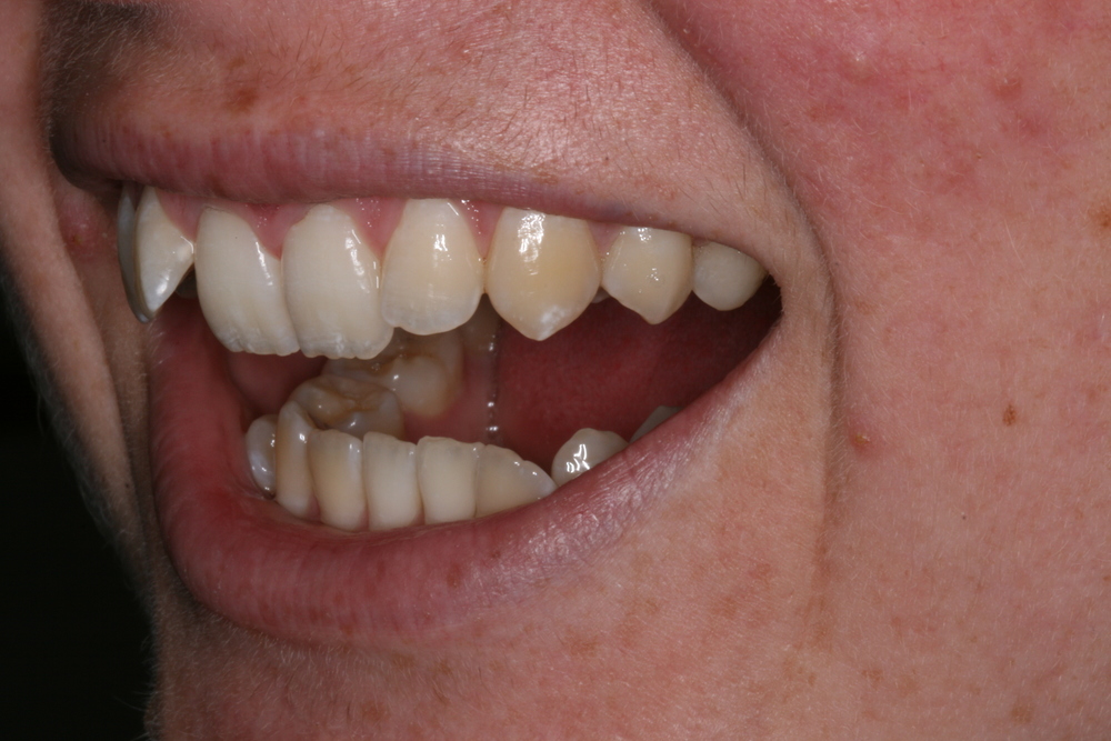The_Tuddenham_Road_Dental_Surgery_Clear_Aligners.JPG