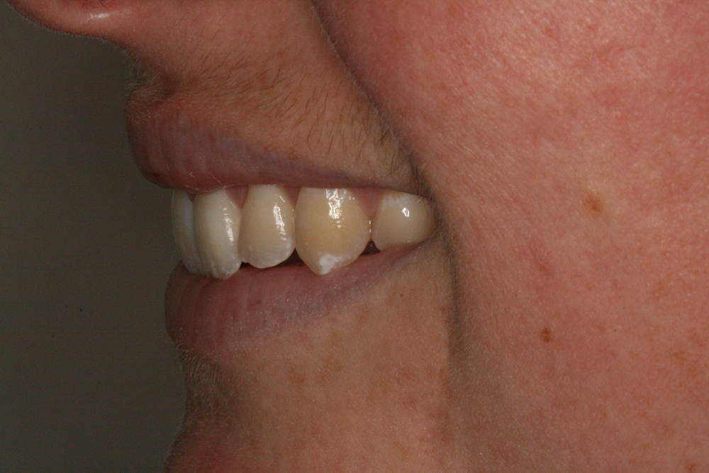The_Tuddenham_Road_Dental_Surgery_Clear_Aligners3.JPG