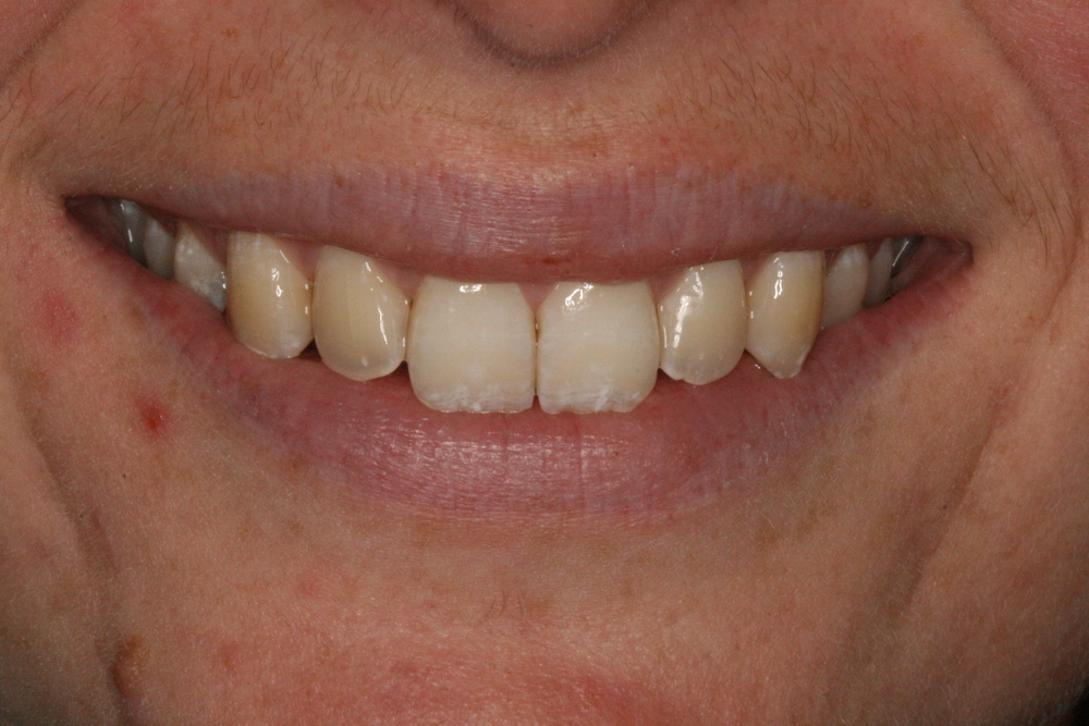 The_Tuddenham_Road_Dental_Surgery_Clear_Aligners2.JPG