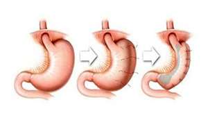 historical proc - Gastric Plication