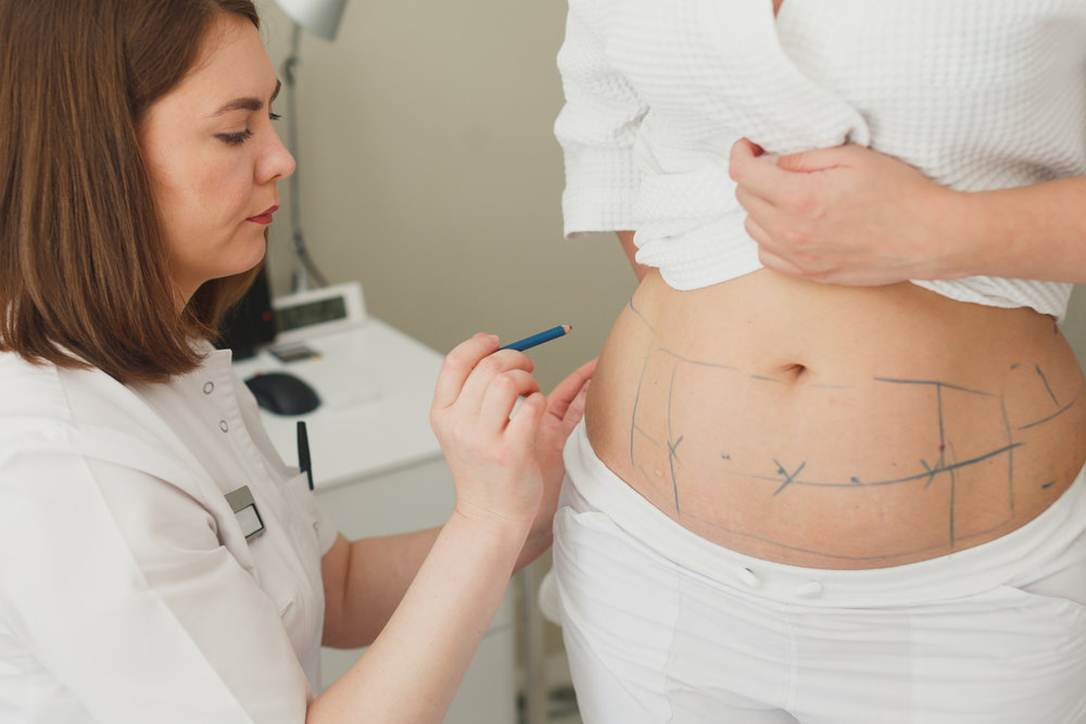 Why Weight Loss Surgery Can Work Better Than Dieting Central Ohio