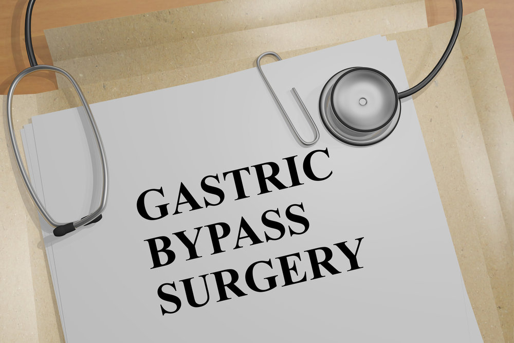 what to expect after gastric bypass surgery.jpeg