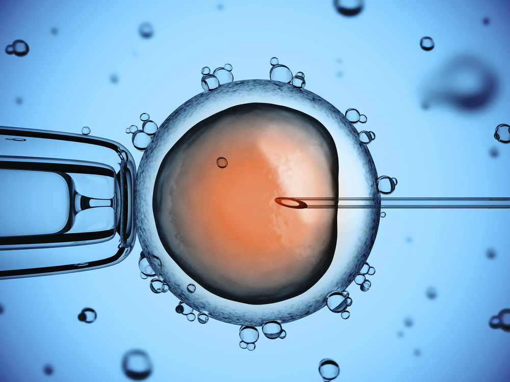 HIGH TECH TREAMENTS Assisted reproductive technology offers the best chances for pregnacy. Find out more about the  advanced high tech fertility treatments we offer.