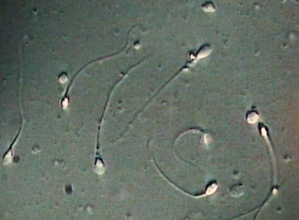 Ivf Tests Sperm Sexual Abstinence