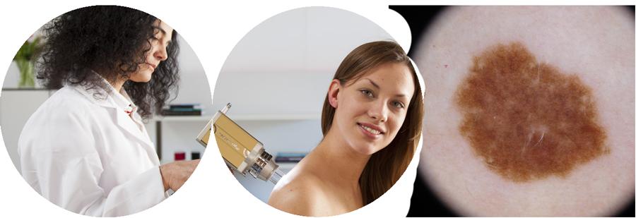 Dermatoscopia-I-(2).png