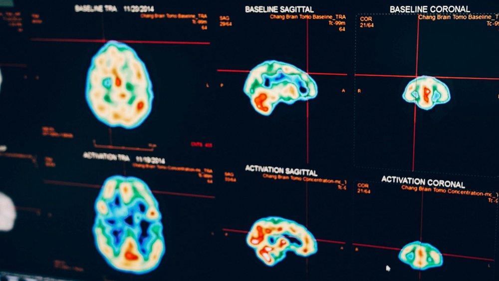 BrainScan.jpeg
