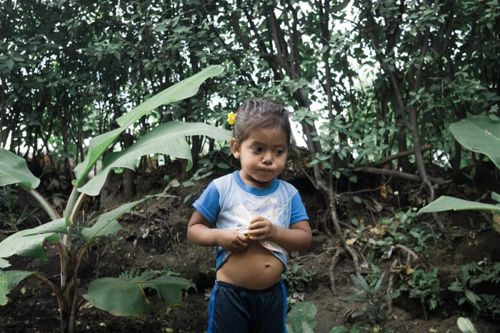 In the photo above: When asked to picture malnutrition, we often envision an emancipated child. The truth is that hunger and malnutrition often produces a distended belly like the little girl above.