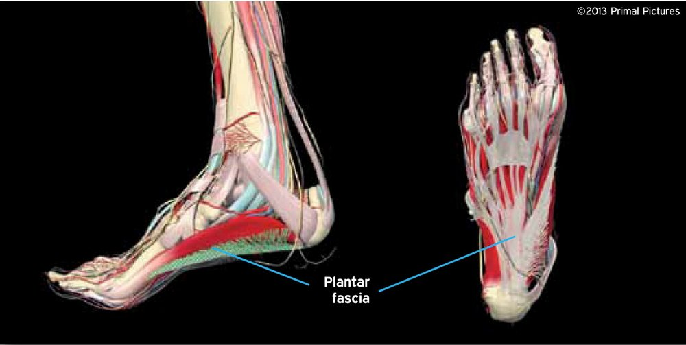 Steps To Heel Plantar Fasciitis Lifecare Point Walter Sports