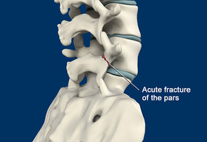 managing-spinal-stress-fractures-img-in-1493201424.jpg