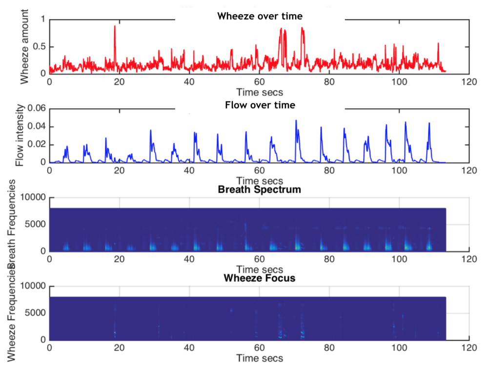 Experimental analysis of a breathing session with wheeze presence.