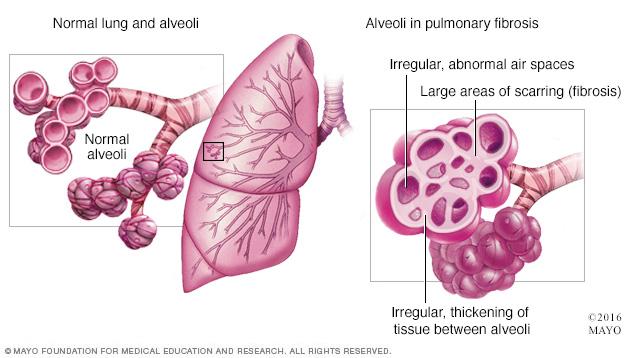 mcdc7_pulmonaryfibrosis-8col.jpg