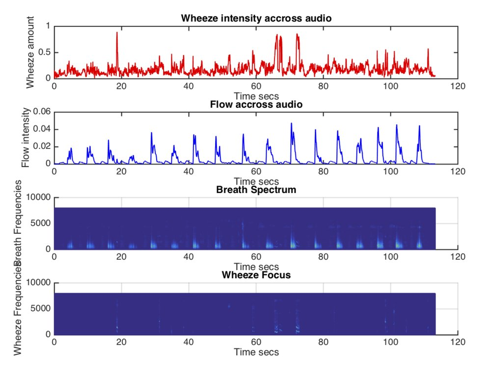 Visual representations of the wheeze components detected in the original recording