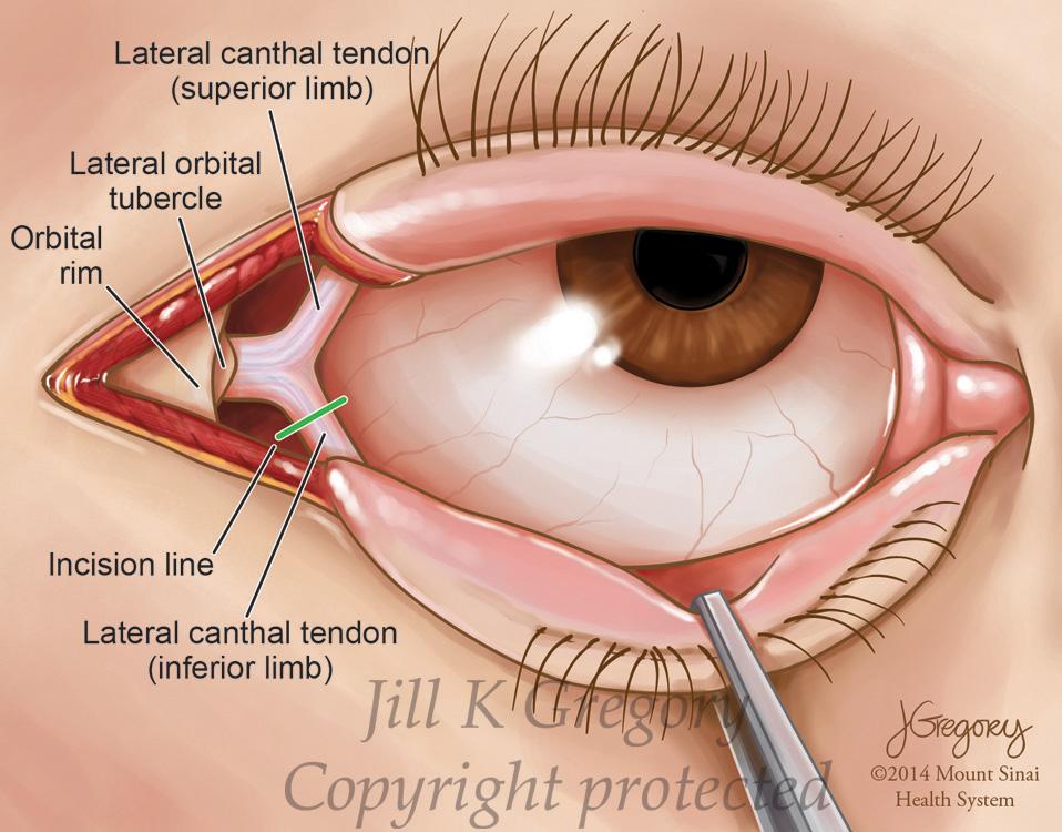 Jill K Gregory Cmi Medical Illustrator