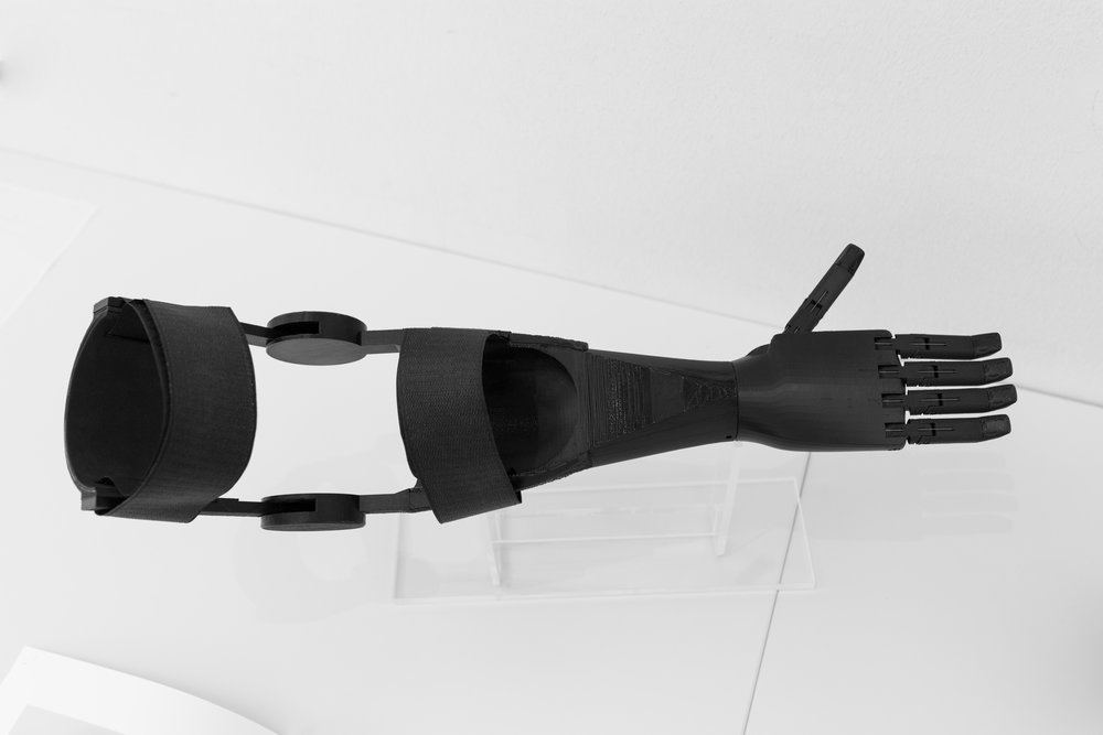 Prostheses for developing countries