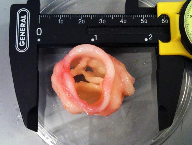 3D-printed-artificial-heart-valve-from-jonathan-butcher.jpg