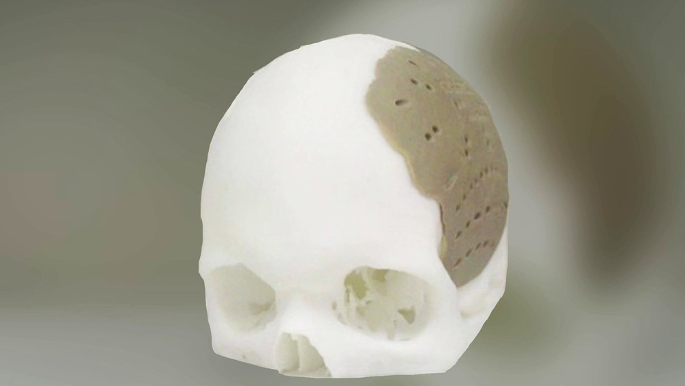The first 3D printed polymer implant to receive FDA approval.