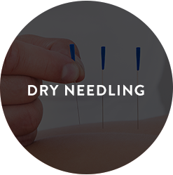 Dry Needling in Sydney CBD