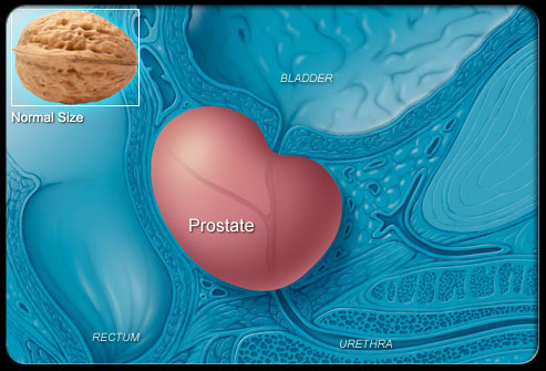 The meaning of an enlarged prostate.