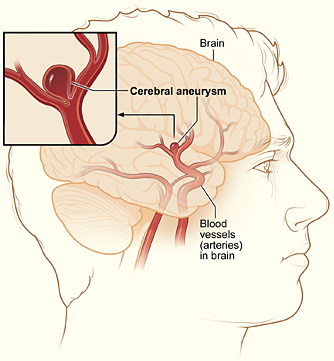 brain hemorrhage and aneurysm.jpg