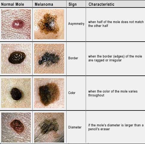 May have found melanoma cure dr david samadi s official blog