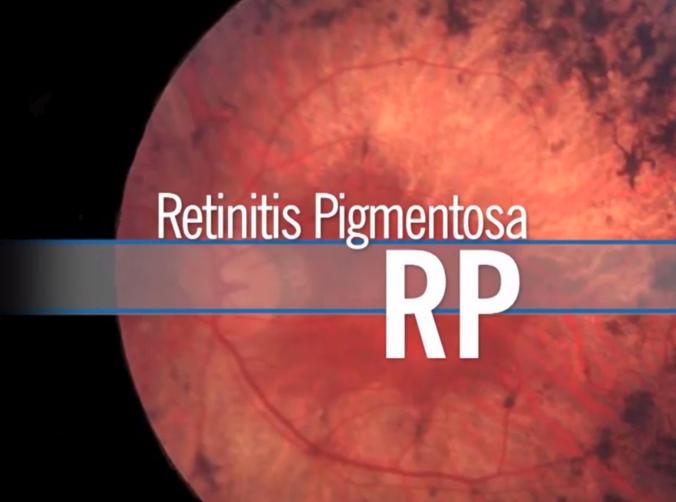 retinitispigmentosadrdavidsamadi.jpg