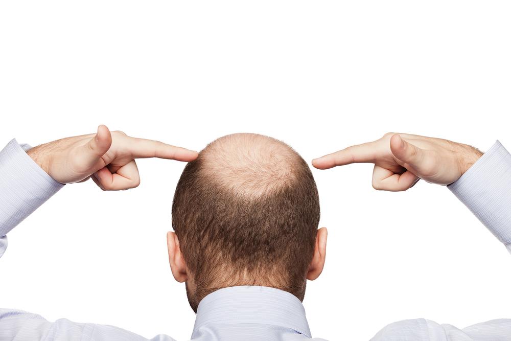 baldnessprostatecancer.jpg