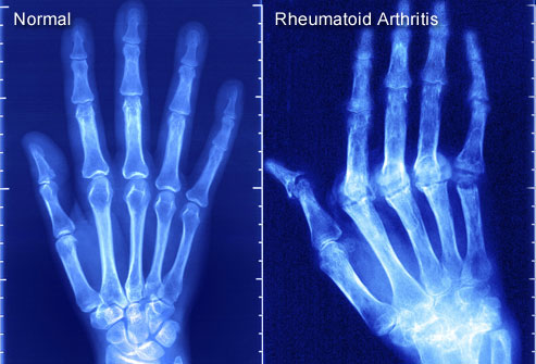 What is rheumatoid arthritis.jpg