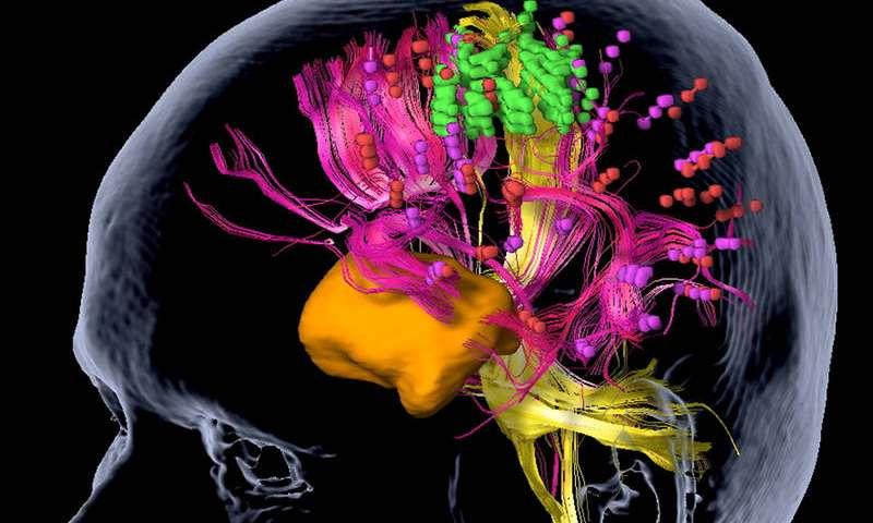 braintumors.jpg