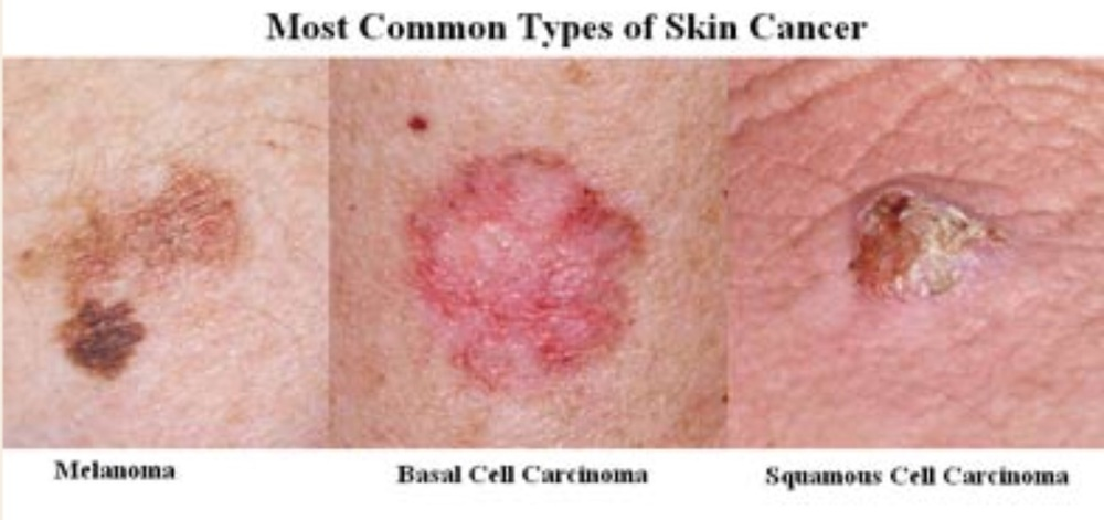 The abc s of skin cancer dr david samadi s official blog