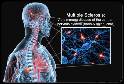 multiplesclerosis.jpg
