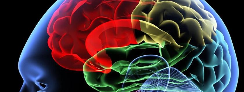 brain aneurysm.jpg