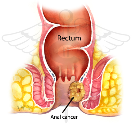 Cancer of anal canal