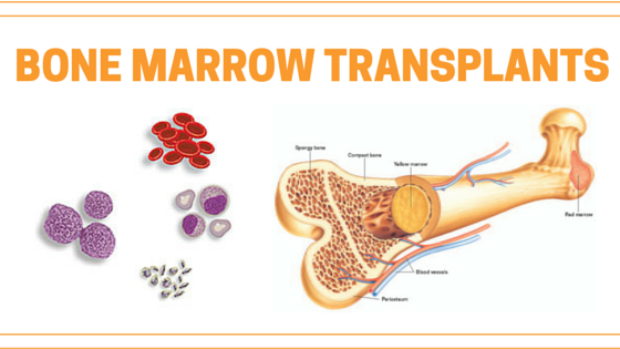 bone marrow donation It depends on technique used for the bone marrow transplantation in past, incision was made in large bone of the donor, typically the pelvis, and bone marrow were collected with inserting needle and drawn through syringe if repeated, this may be.