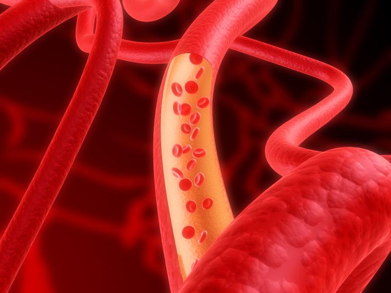 blood clot