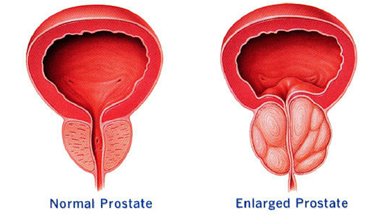 enlargedprostate.jpg
