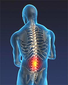 spinalmeningitis.jpg