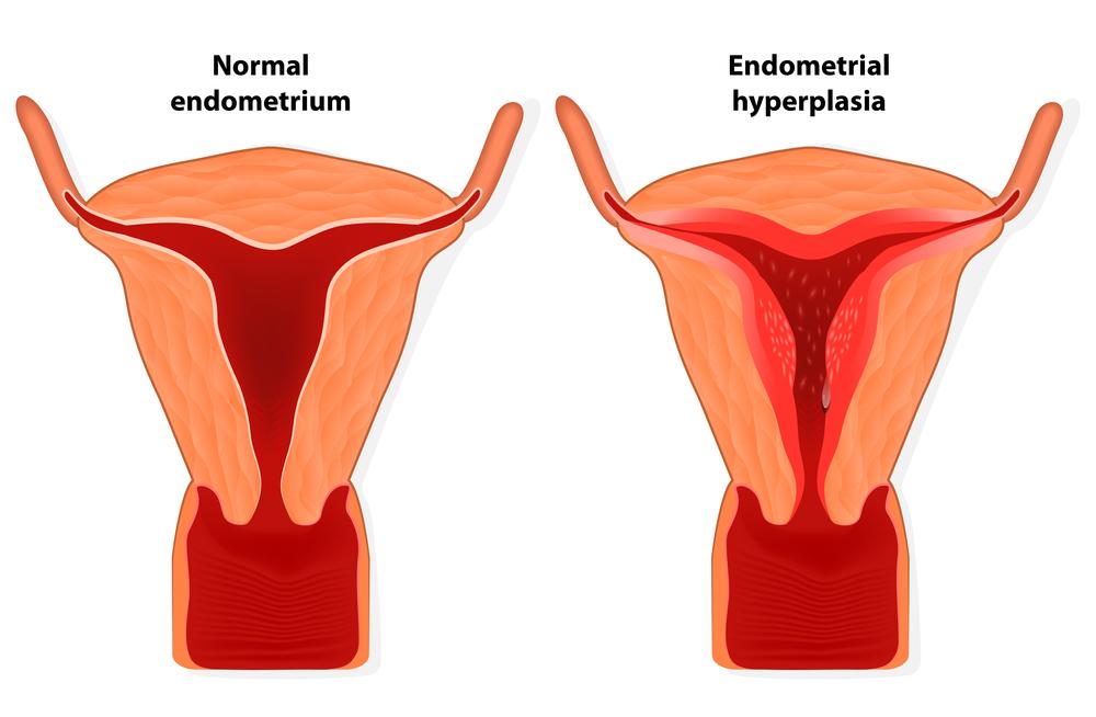 Image result for Menorrhagia