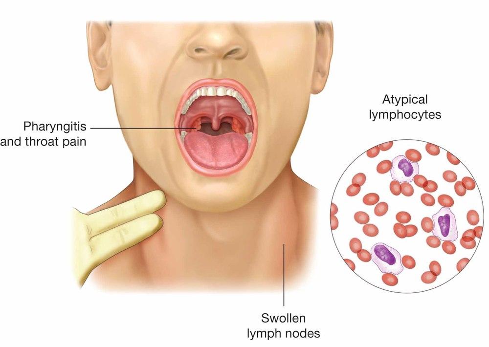 mononucleosis.jpg