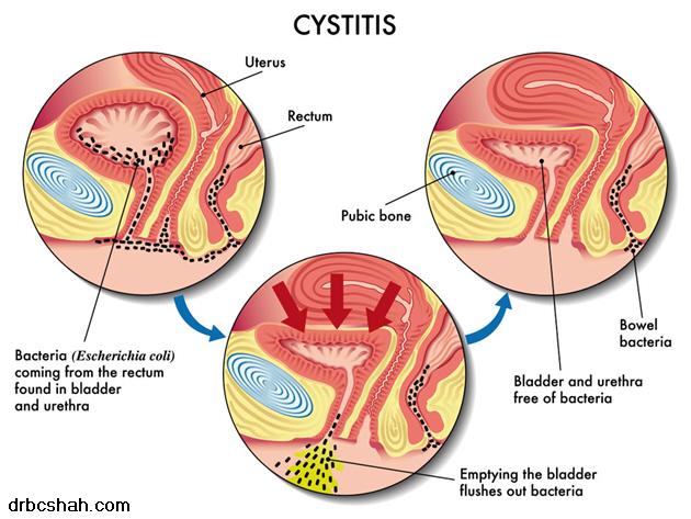 Do you have cystitis dr david samadi s official blog